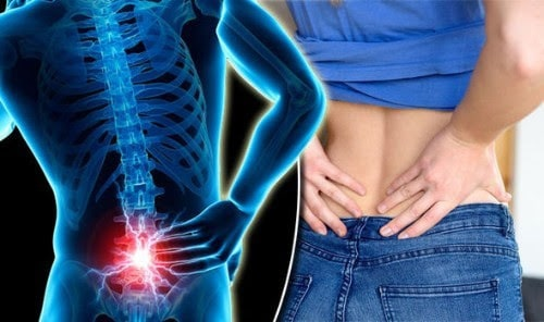 back pain - lilyfield physio