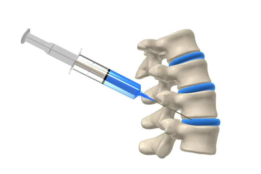 Little evidence to support cortisone injections for back pain