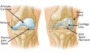 Osteoarthritis in Knee